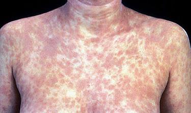 ซิฟิลิส (syphilis)